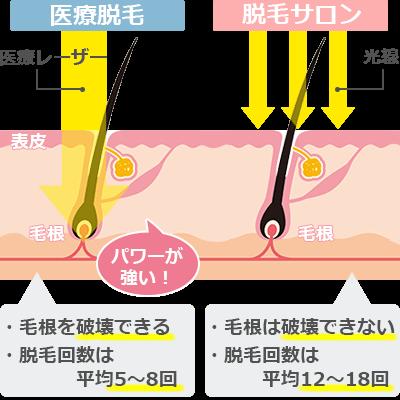 光脱毛と医療脱毛の脱毛方法の違い