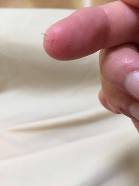 IPL脱毛照射10日後抜毛落ちた毛の写真