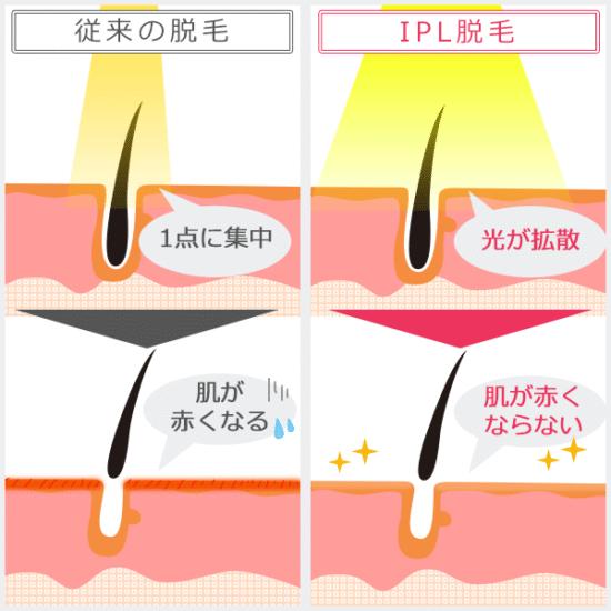 IPL方式と従来の脱毛方式の違いが分かる図