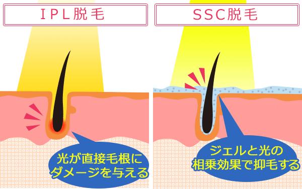 IPL脱毛とSSC脱毛の違いが分かる図
