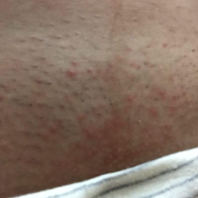 VIO脱毛の事前処理で生じた肌トラブル
