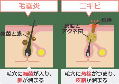 脱毛後にできるのはニキビではなく毛嚢炎(もうのうえん)