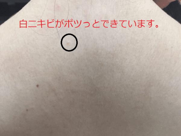 白ニキビができている背中の写真
