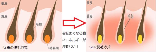 SHRとその他の脱毛光仕組みイラスト説明