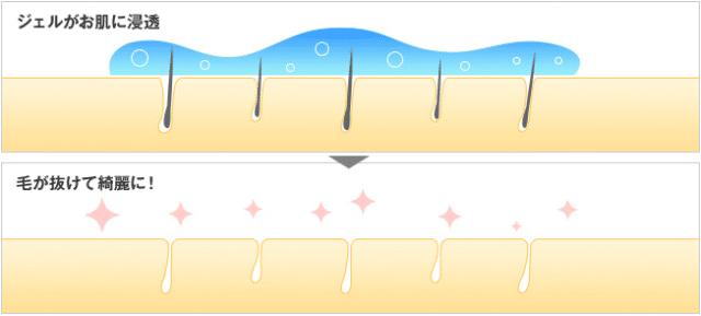 SSC脱毛の抑毛効果がわかる図