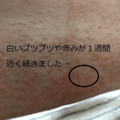 Vラインが炎症して白いぶつぶつや赤みがでている状態の写真