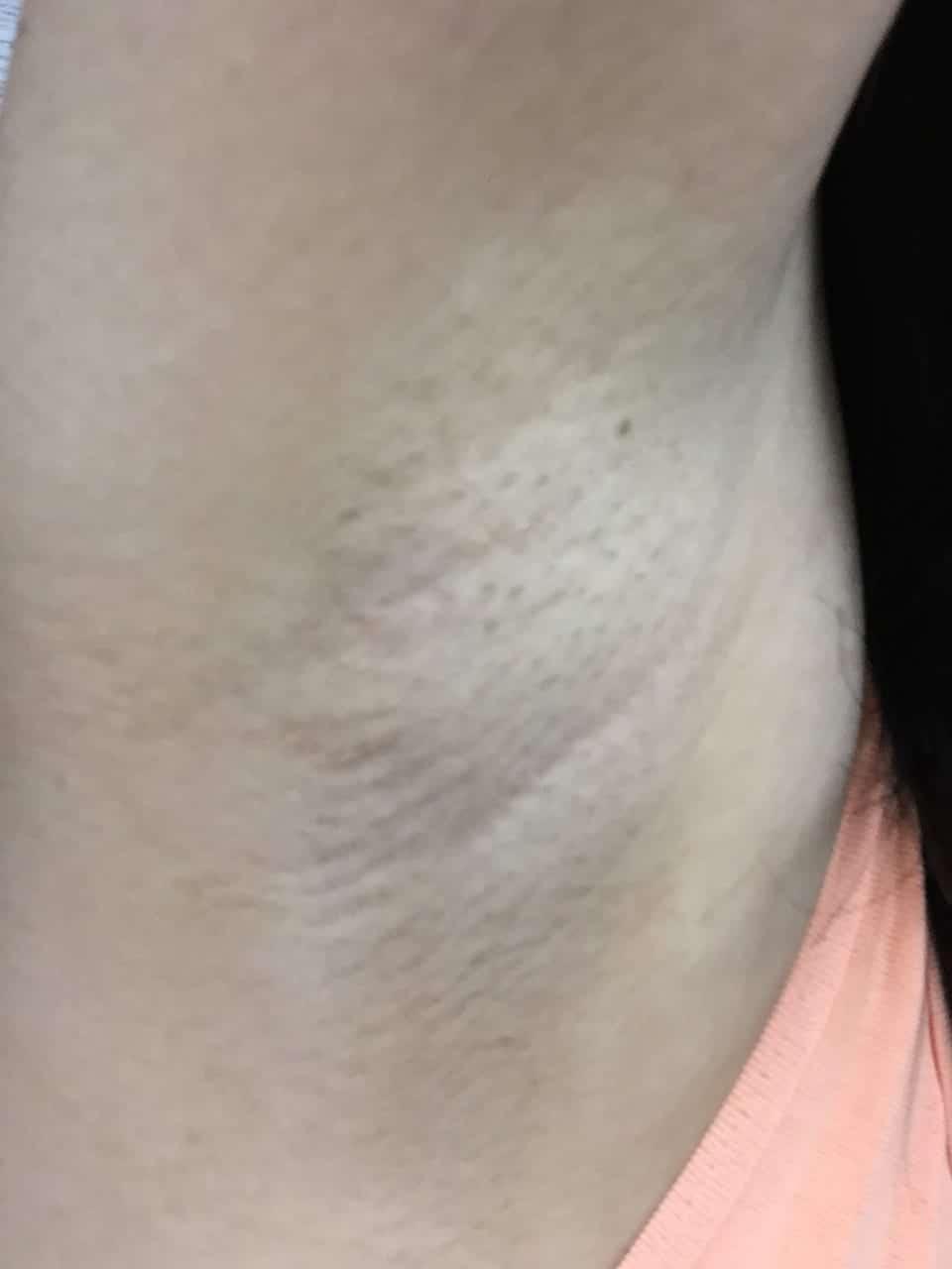 ワキ脱毛後の写真