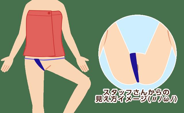 Iライン脱毛時ガウンと大勢イラスト説明