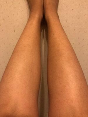銀座カラー6回目脚脱毛効果写真