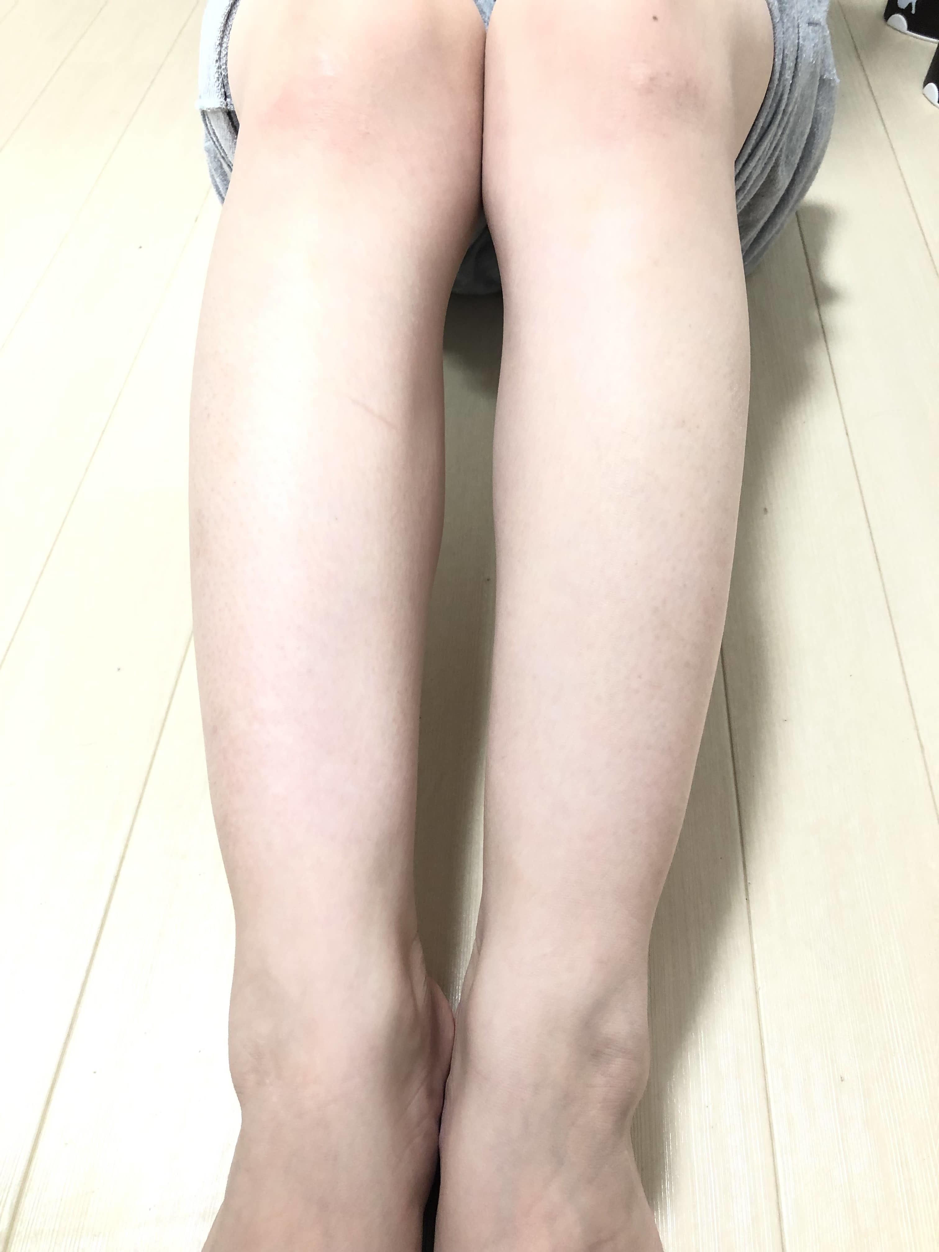 銀座カラー脚脱毛写真2