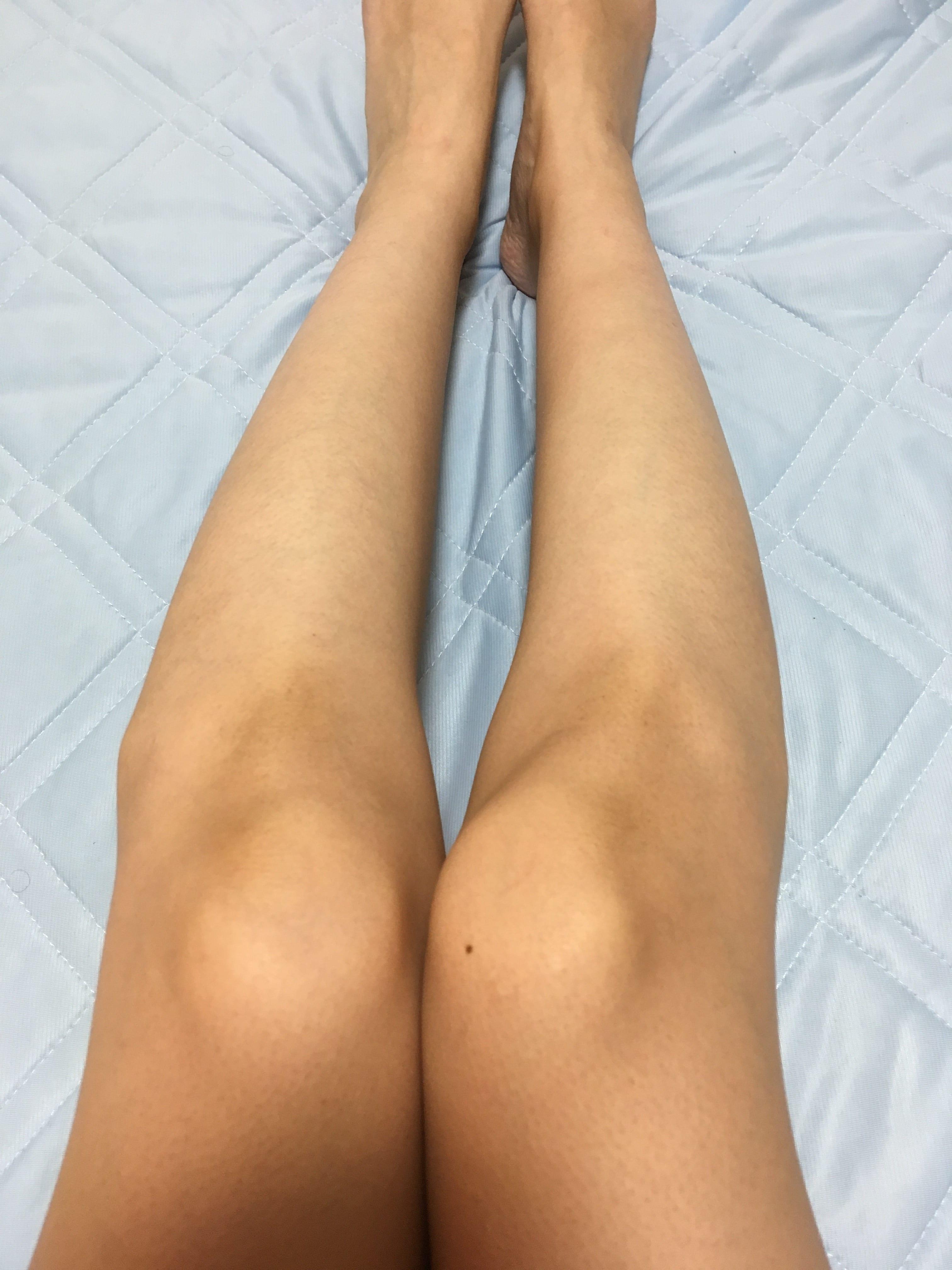 銀座カラー脚脱毛写真1