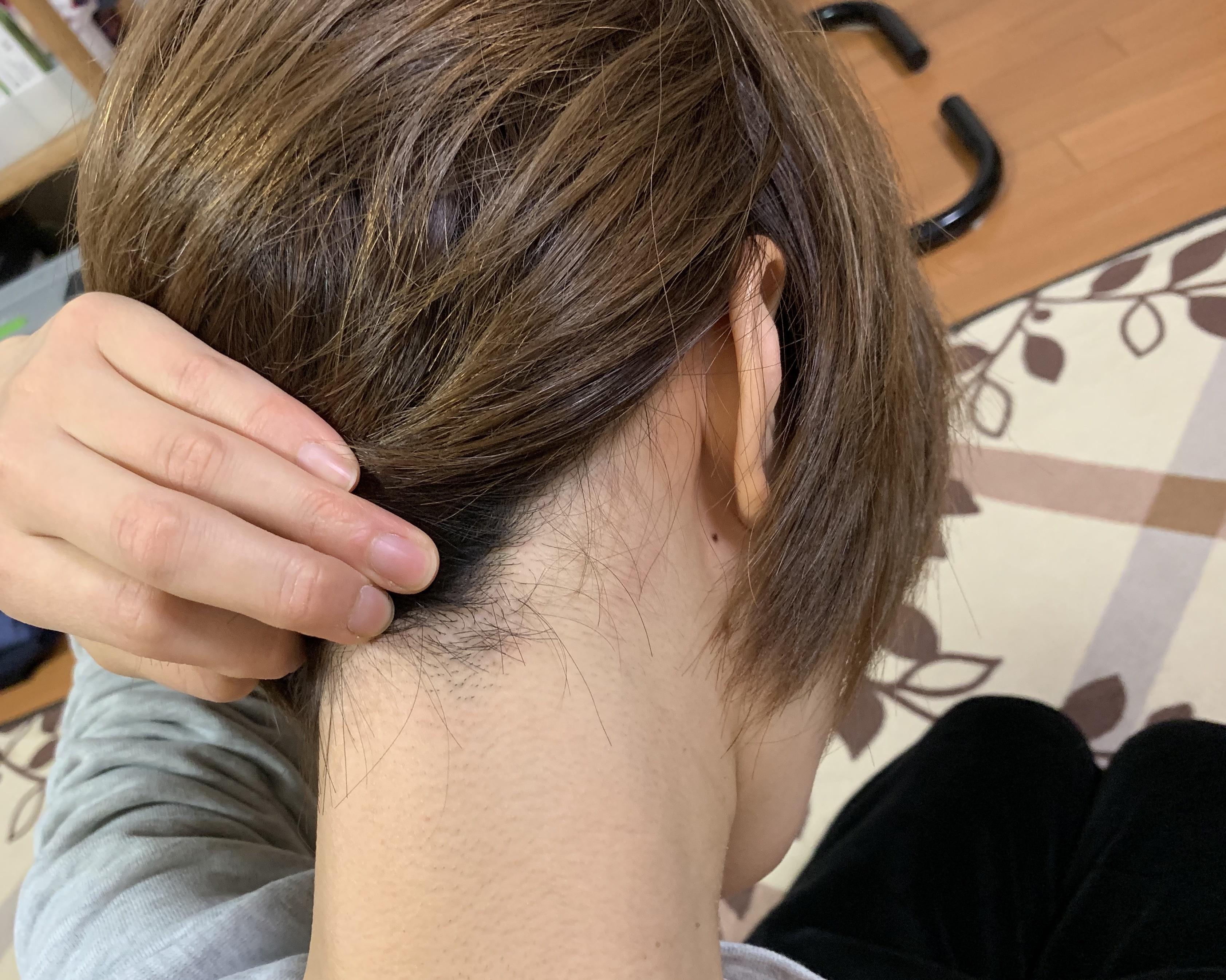 銀座カラーうなじ脱毛写真2