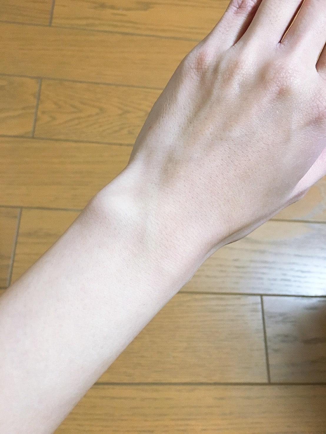 銀座カラー手脱毛写真1