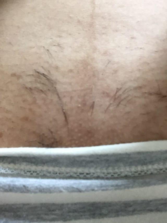 医療VIO脱毛4回目の写真