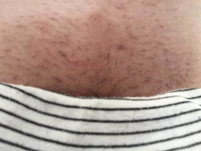 医療VIO脱毛脱毛1回目の写真