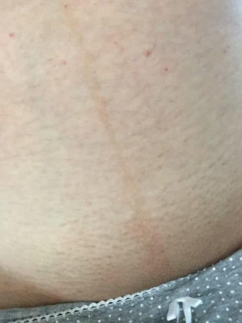 医療VIO脱毛1回目から10日経過した写真