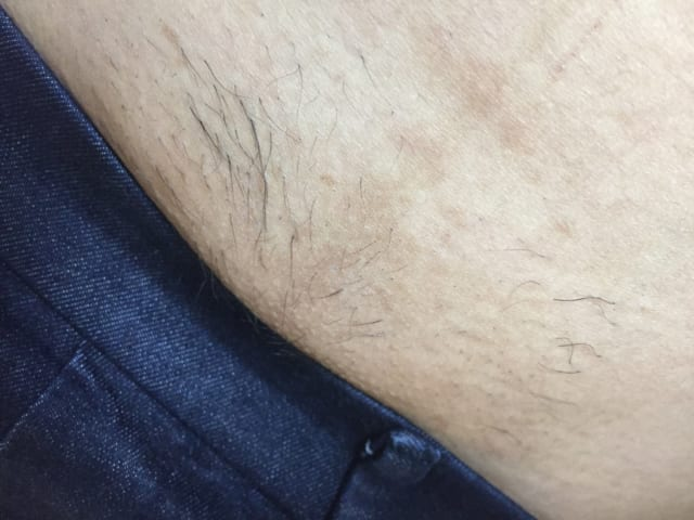 医療VIO脱毛3回目の写真