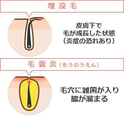 アンダーヘア(VIO)をワックス・毛抜きで自己処理する注意点(埋没毛と毛嚢炎)