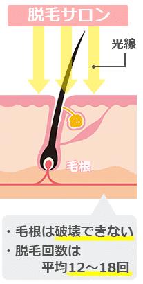 脱毛サロンの光脱毛の仕組みについて