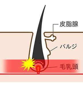 IPL脱毛は毛乳頭にアプローチする脱毛方法