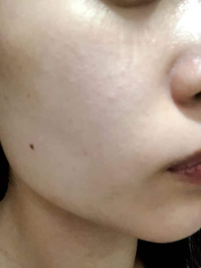 ストラッシュの脱毛アフター5回目の顔脱毛効果