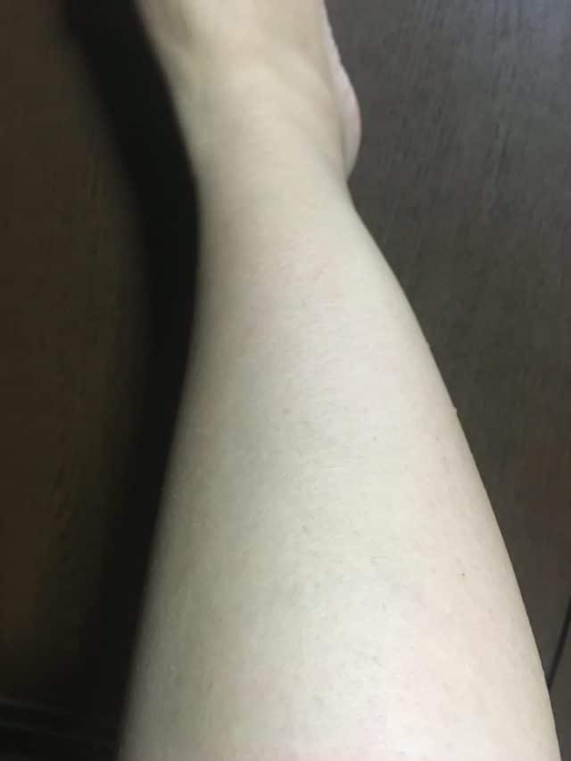 ストラッシュで4回目脱毛後の効果(脚)