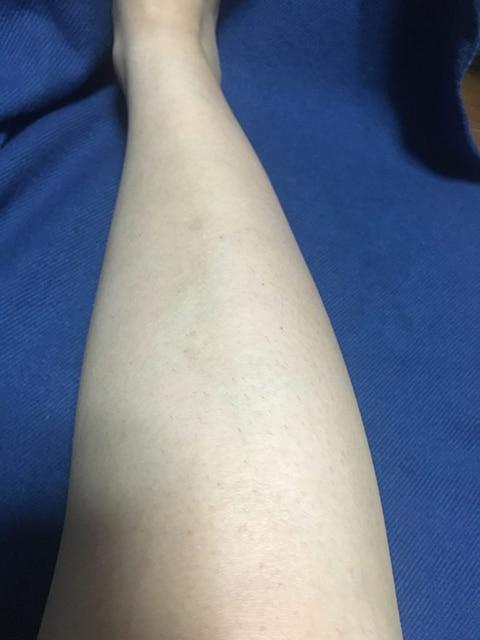 ストラッシュで1回目脱毛後の効果(足)