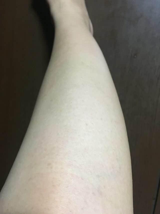 ストラッシュで5回目脱毛後の効果(脚)