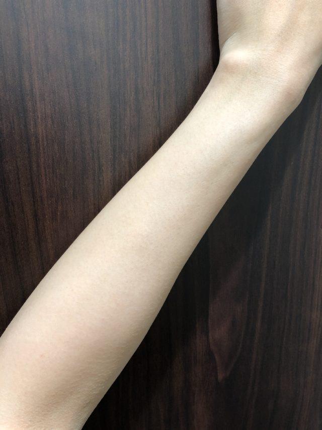 ストラッシュで9回目脱毛後の効果(腕)
