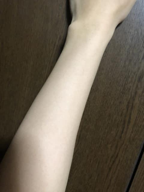 ストラッシュで8回目脱毛後の効果(腕)