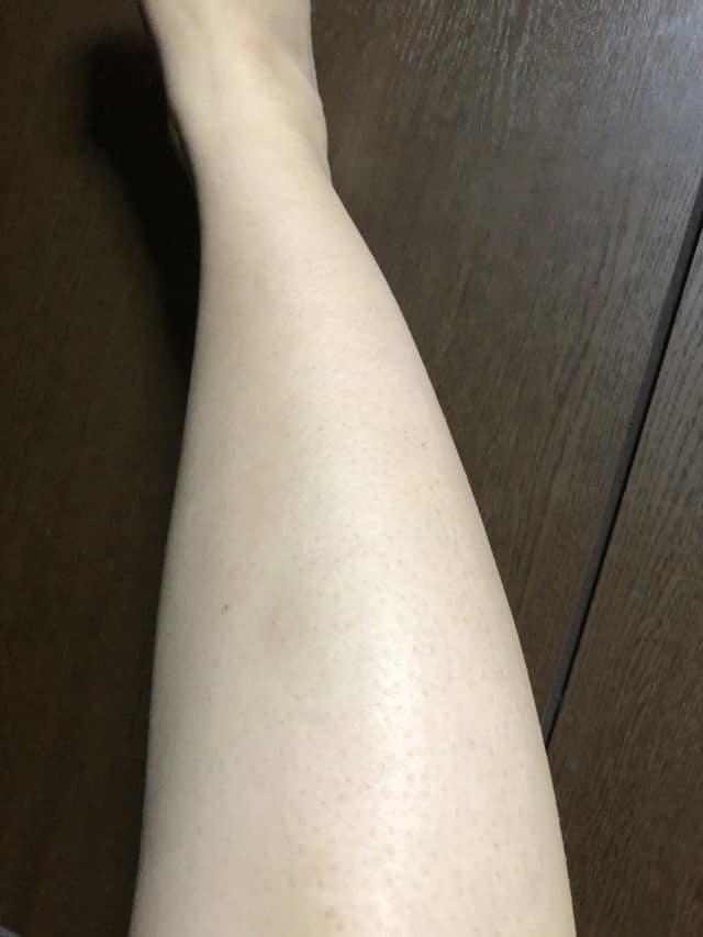 ストラッシュで8回目脱毛後の効果(脚)