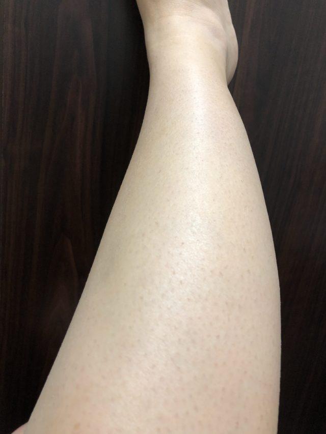 ストラッシュの脱毛アフター9回目の足脱毛効果