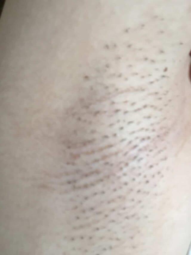 家庭用脱毛器を2ヶ月間週一回で照射した右ワキの画像