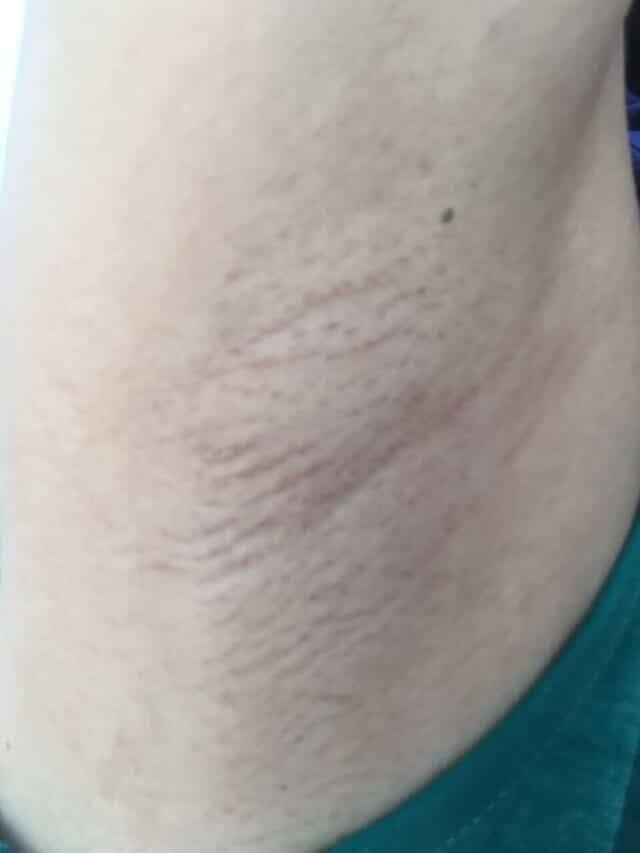 家庭用脱毛器を3ヶ月間週一回で照射した右ワキの画像