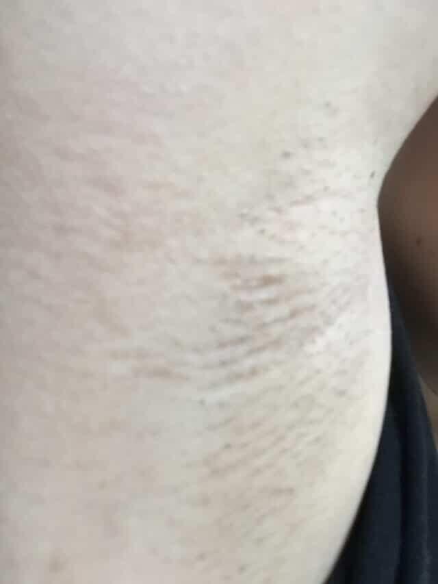 家庭用脱毛器を6ヶ月間週一回で照射した右ワキの画像