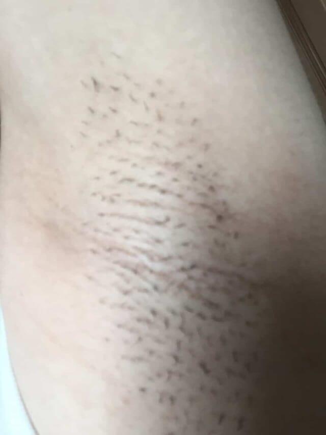家庭用脱毛器を2ヶ月間毎日照射した左ワキの画像