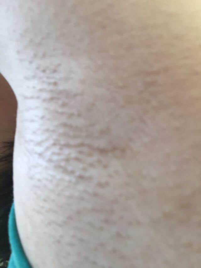 家庭用脱毛器で脱毛してから3 ヶ月後の左わき