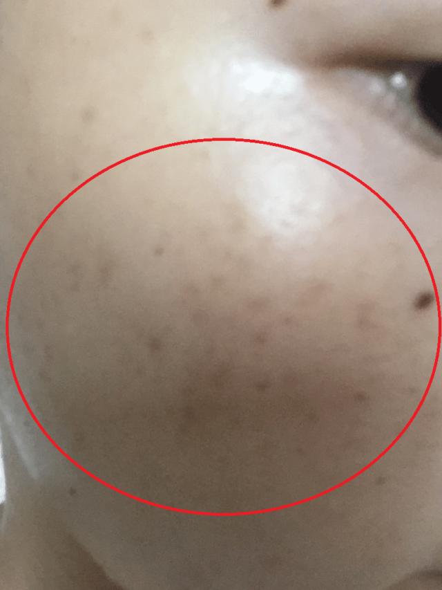 ケノンでシミ取り前の頬のシミ