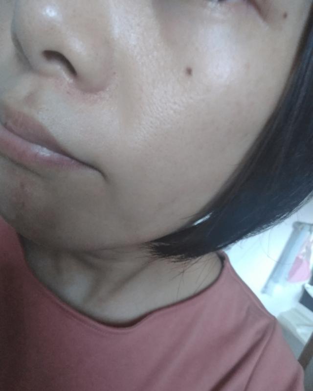 ケノン美顔器を使って3年後の顔の画像