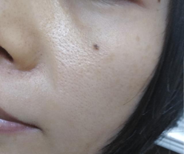 ケノン美顔器の効果画像(6ヶ月使ってキレイになった頬の毛穴)