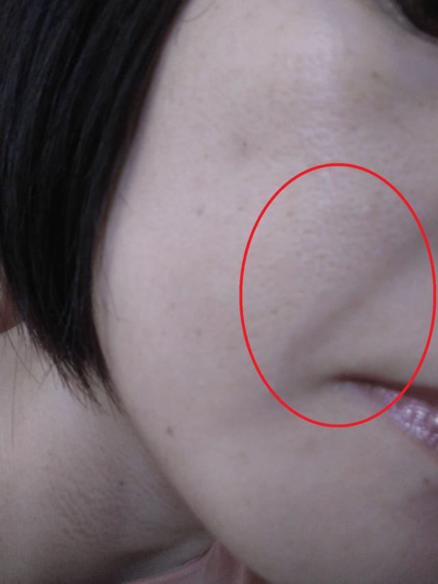 ケノン美顔器を使う前日のほうれい線画像