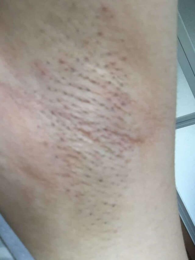 ケノン美顔器を使う前の黒ずみが酷い脇