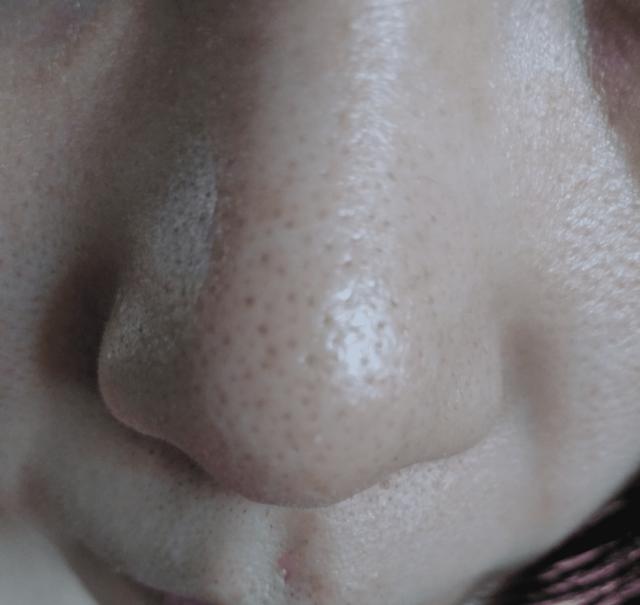 ケノン美顔器を使う前の小鼻黒ずみ(イチゴ鼻)画像