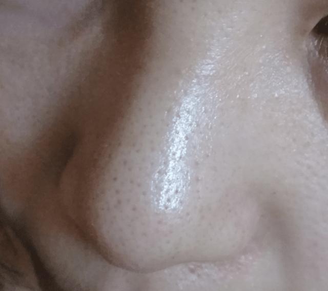 ケノン美顔器の効果画像(8ヶ月使って黒ずみが改善した小鼻)