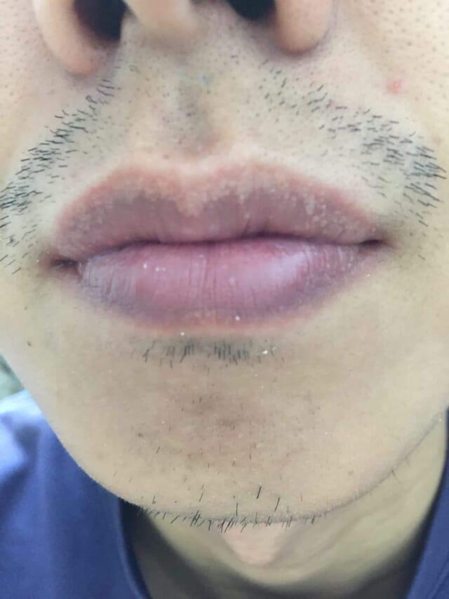 ケノン髭脱毛への口コミ写真「脱毛前の髭」