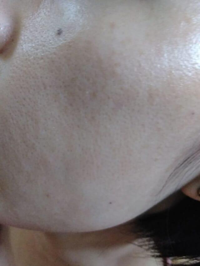 ケノン美顔器を使う前日の開いた頬の毛穴画像