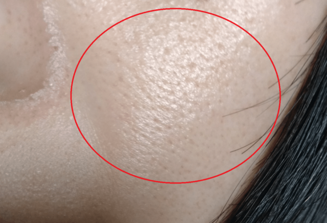 ケノン美顔器の効果画像(3年後の毛穴のアップ)