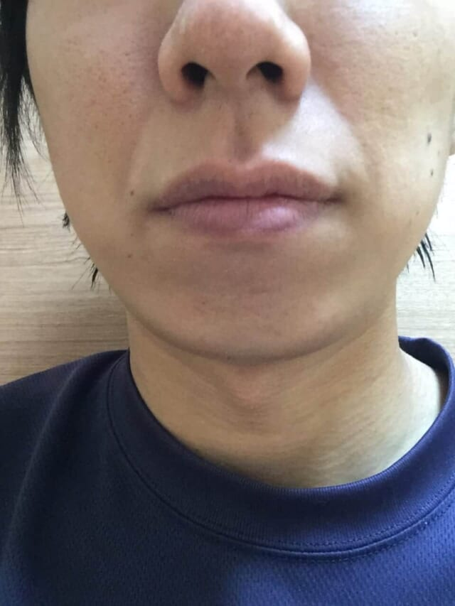 ケノンの髭脱毛効果|2年後(約40回)の男性の経過写真