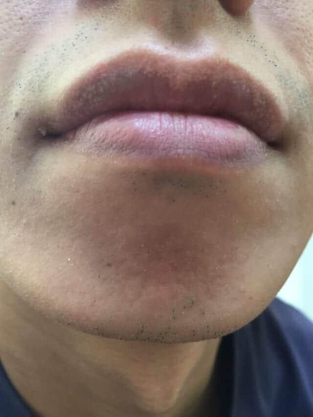 ケノンの髭脱毛効果|6ヶ月後(約24回)の男性の経過写真