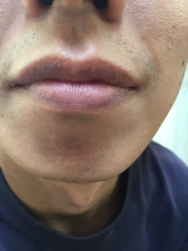 ケノンの髭脱毛効果|3ヶ月後(約12回)の男性の経過写真